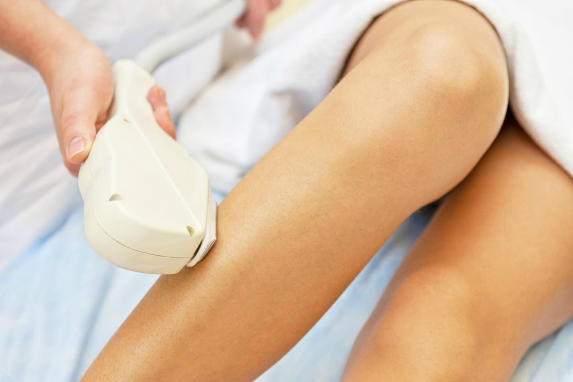 Como funcionam as franquias de depilação